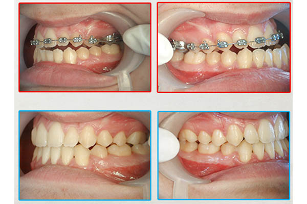 Orthodontie Casablanca